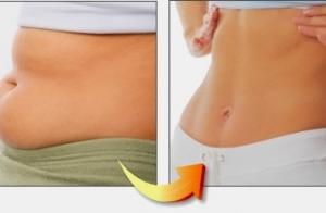 Más delgada Lipofit y masaje