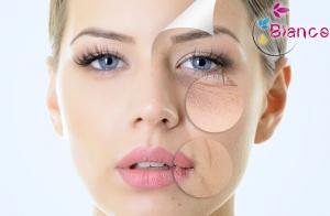 Peeling, mesoterapia y ácido hialurónico