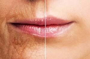 Mejora las arrugas de tus labios con hialurónico